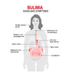 Bulimia. Signs and symptoms Stock Photo