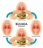 bulimie lizenzfreie abbildung