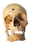 Bullet hole in Human skull. Human skull, with bullet hole Stock Image