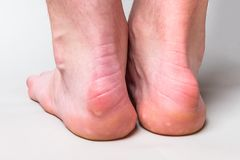 Bump on the back of heel bone called Haglund`s deformity on gray background. Bump on the back of heel bone called Haglund`s deformity on gray background stock photos