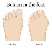 Bunion в ноге Стоковое Изображение