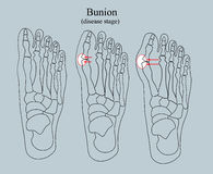 Bunion, этап заболеванием Стоковые Фотографии RF