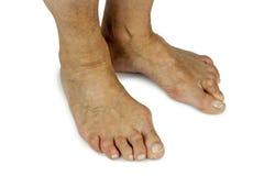 Bunion deformity. Feet deformity. Close up royalty free stock photo