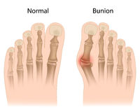 Bunion in foot. Deformity of the big toe joint usually due to tight fitting shoes, eps10 Royalty Free Stock Photography