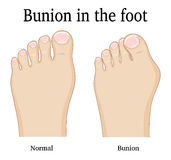 Bunion in the foot. Comparison of a healthy foot and foot with hallux valgus deformity Bunion royalty free illustration
