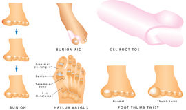 Bunion Royalty Free Stock Photos