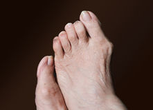 Bunion - hallux valgus on brown background. Bunion - hallux valgus isolated on brown background Royalty Free Stock Images