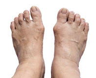 Bunion - hallux valgus on white background Stock Photo