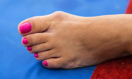Bunion - Hallux Valgus royalty free stock images
