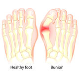 Bunion. Human anatomy. Skeleton. Healthy foot and foot with Bunion. Human anatomy. Skeleton Royalty Free Stock Photo