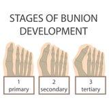 Bunion ontwikkeling stock illustratie
