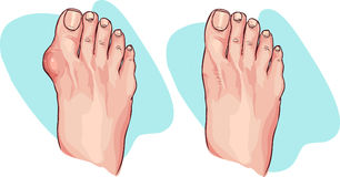 Bunion before and after operation. Vector illustration. Stock Image
