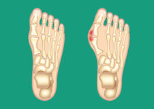 Bunion Stock Images