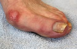 Bunion and Toenail Fungus Royalty Free Stock Photography