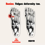 Bunion. Valgus deformity toe. Stock Photo