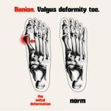Bunion. Valgus deformity toe. Stock Photo