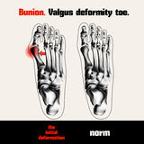 Bunion. Valgus deformity toe. Royalty Free Stock Photos