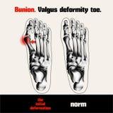 Bunion. Valgus deformity toe. Royalty Free Stock Photos