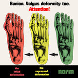 Bunion. Valgus deformity toe. Stock Photos