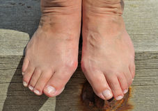 Bunions. A painful, bony lump that can develop on the side of your foot Stock Photos
