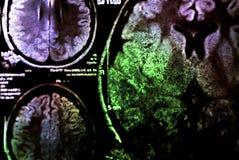 Bunter Röntgenstrahlscan des Gehirns Stockbild