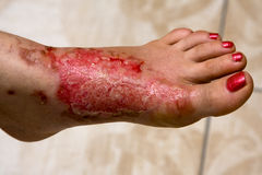 Free Burn Feet Royalty Free Stock Images - 20872549