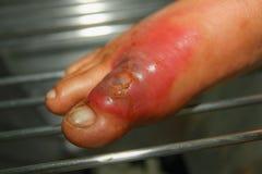 Burn feet. Severe burns in the  leg Stock Photography