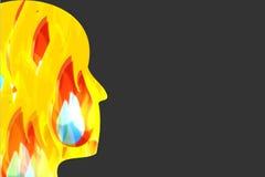 Burn Identity Royalty Free Stock Photography