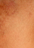 A burn scar that is partly healed Stock Images