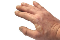 Burns on hand Stock Photography