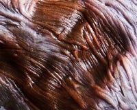 Burnt human skin Stock Photo