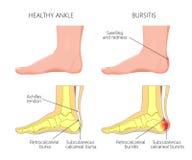 Bursite de Achilles Imagens de Stock