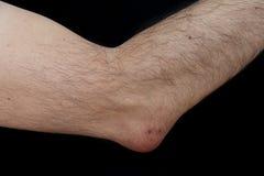 Bursite do olecrânio, igualmente conhecida como o cotovelo do estudante Imagem de Stock Royalty Free