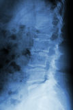 Burst fracture at lumbar spine Royalty Free Stock Image