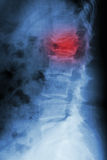 burst fracture at lumbar spine Stock Image