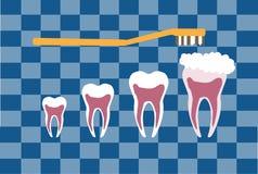 Bush und Zahn auf blauen Schottenstoffhintergründen, Gesundheitswesen Stockfotos