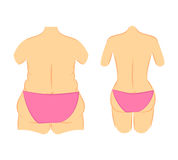 Butt lift correction waist line. Medical vector illustration two types female figures in panties, bikini thick and thin. Plastic surgery cellulite removal and Stock Images