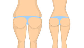 Before and after buttocks. Royalty Free Stock Image