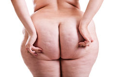 Buttocks of girl with obesity. Hands girls naked buttocks cellulite Royalty Free Stock Photo