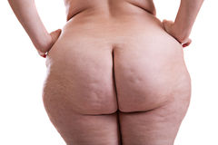 Buttocks of girl with obesity. Buttocks naked girl with obesity and cellulite Royalty Free Stock Image