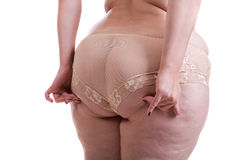 Buttocks of a woman patient cellulite Stock Image