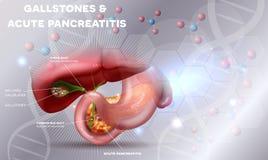 Cálculos biliares e pancreatitie imagens de stock royalty free
