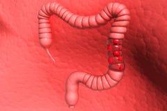 Cáncer de colon stock de ilustración