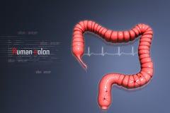 Cáncer de colon ilustración del vector