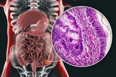 Cáncer de colon, ejemplo y foto debajo del microscopio stock de ilustración