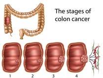 Cáncer de colon, eps8 ilustración del vector