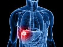 Cáncer de hígado ilustración del vector