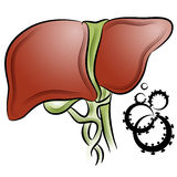 Cáncer de hígado Fotografía de archivo libre de regalías
