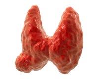 Cáncer de la glándula tiroides Foto de archivo libre de regalías
