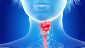 Cáncer de la laringe